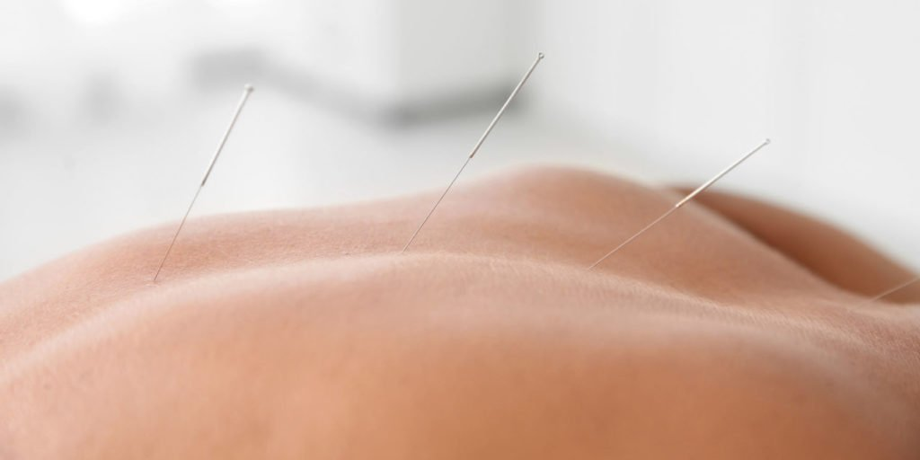 acupuncture and dry needling treatment for back pain