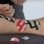 Kinesio Tape is Part of the Answer to Running Injuries